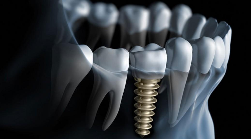 Implantul dentar si reprezentarea nivelului profesional