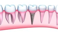 Care sunt etapele si beneficiile unui implant dentar?