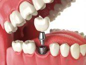 Implanturi dentare - cand sunt cea mai buna solutie?